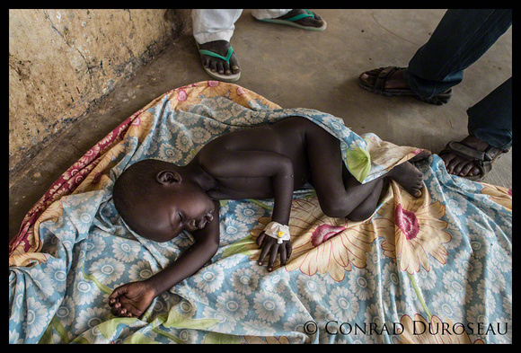 Toddler in Phase 1 Malnutrition